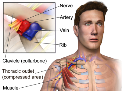Thoracic Outlet Syndrome web
